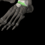 右足裏の痛み|突然襲う激痛とカイロプラクティック