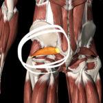 坐骨神経痛|腰痛|痺れ