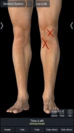 No. 178「膝が腫れて歩きづらい」